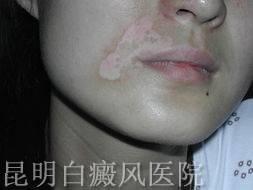女性白癜风治疗