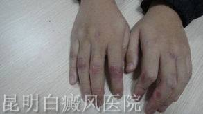 手部白癜风原因