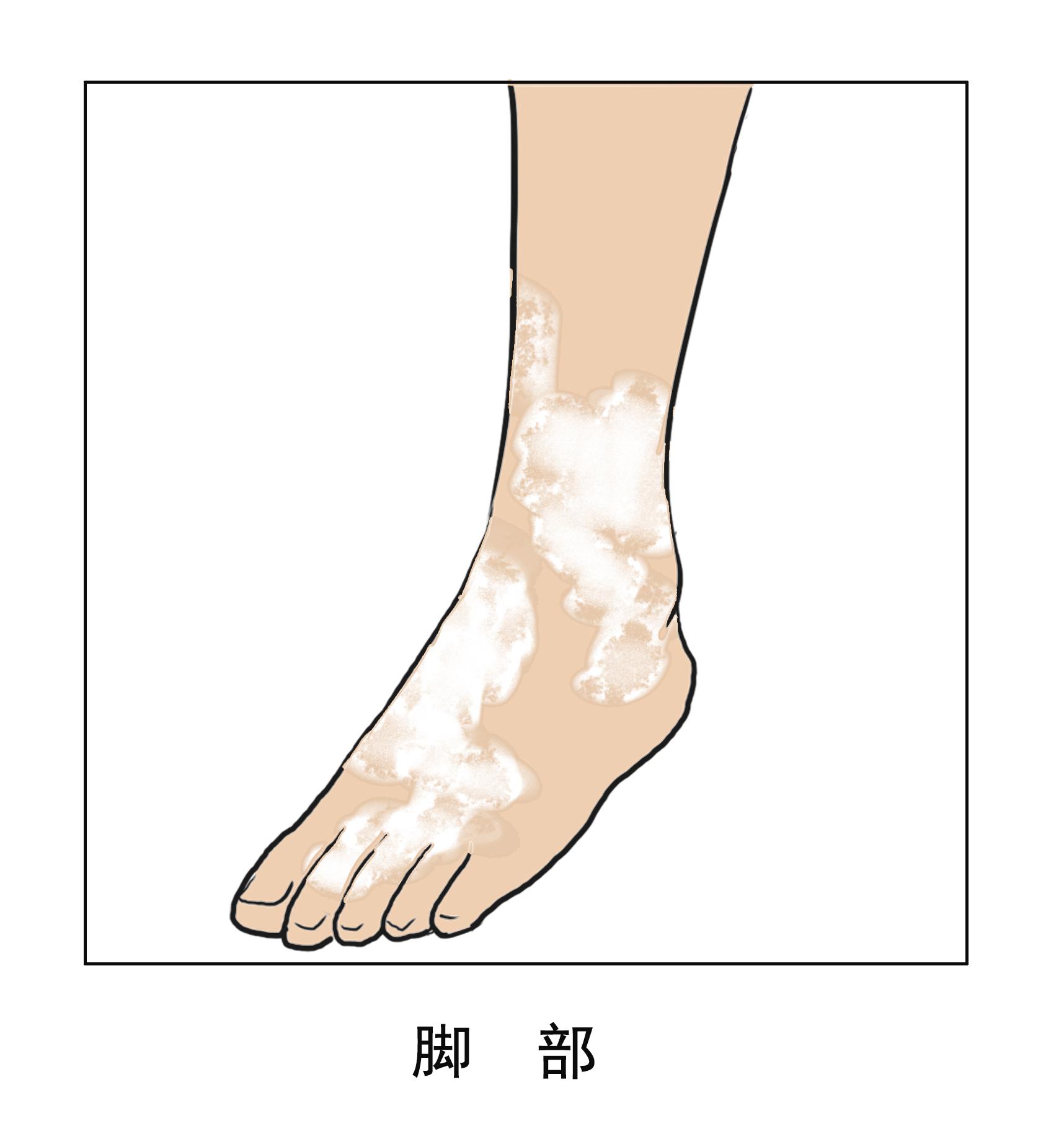 冬季脚部白癜风如何护理