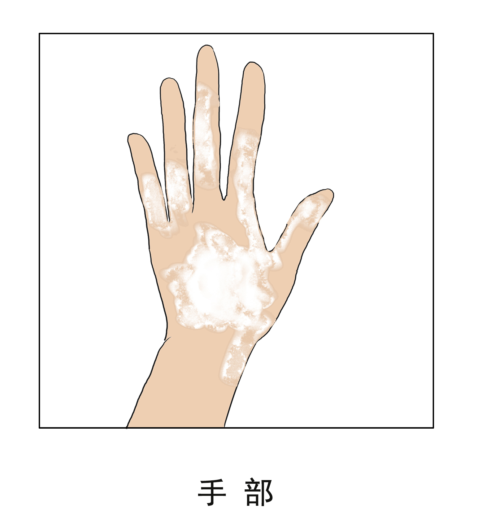 昆明治疗白癜风效果讲解手部白斑怎么医治好